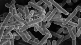 Bacillus coagulans cepa CGMCC 13044 (cepa de la patente GBW); GenProGut. Foto: GBW
